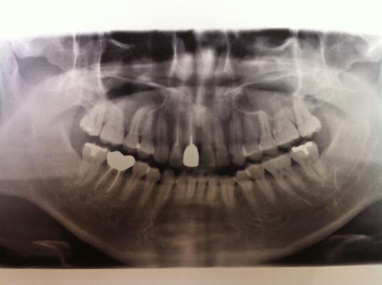 歯のレントゲン写真。しみる箇所は異常無し。反対側の左下に虫歯 。
